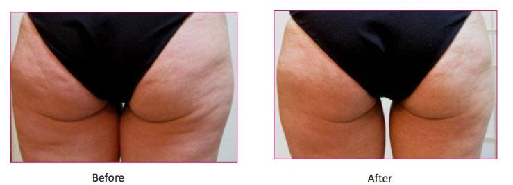 Cellulite Treatment with Viora Reaction Seattle WA