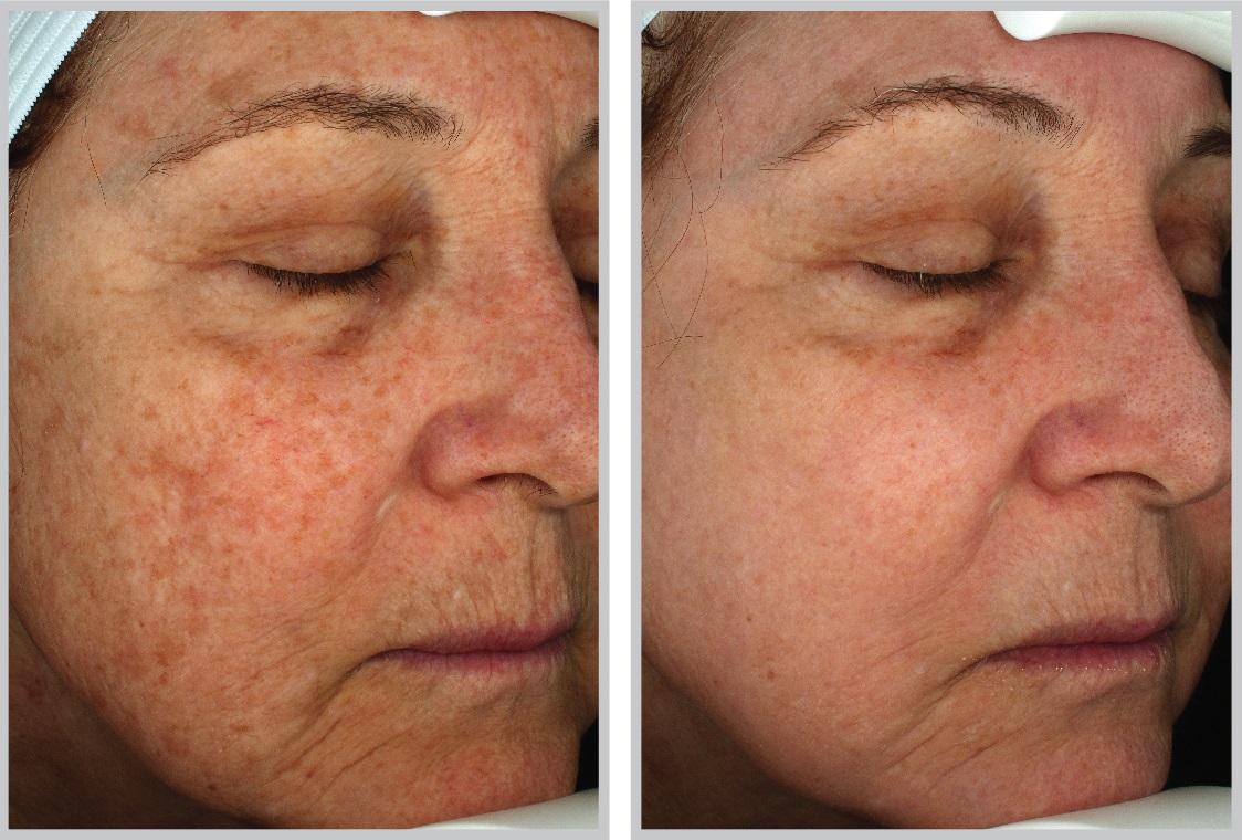Halo Hybrid Laser Skin Resurfacing In Seattle Wa